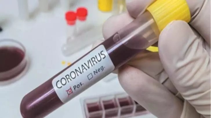 STUDIU: Imunitatea la Covid-19 ar putea dura doar câteva luni