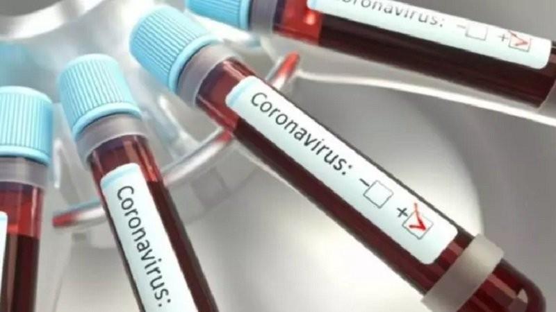 Trei medici de la Spitalul din Arad, infectați cu COVID-19